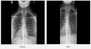 scoliosis befere:after2014